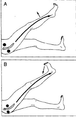 Papulák - okok és kezelés A pénisz moxibustionja
