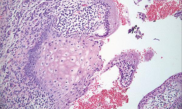 pikkelyes papilloma urethra