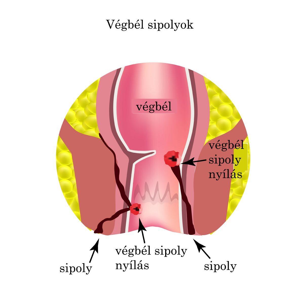 coccyx rák tünetei)