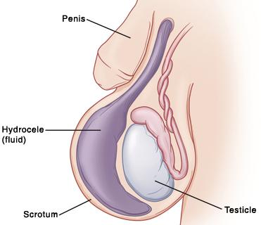 condyloma a herén