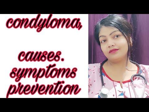 condyloma a nők kezelésében)