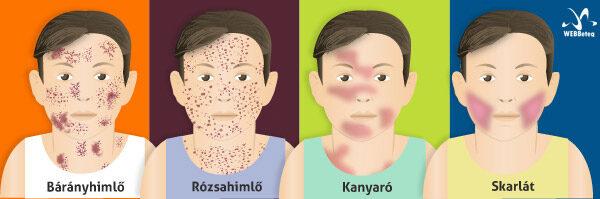 természetes dysbiosis kezelés