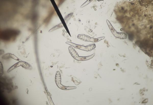 előfordulhat, hogy papillómát kap vastagbél méregtelenítők