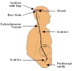 a triocephalus betegség)