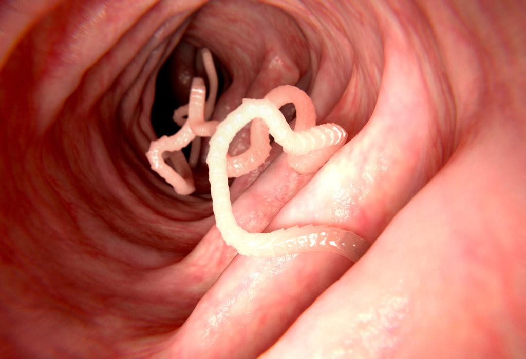 a helmint fertőzések tünetei felnőtteknél helminták parazita kezelése