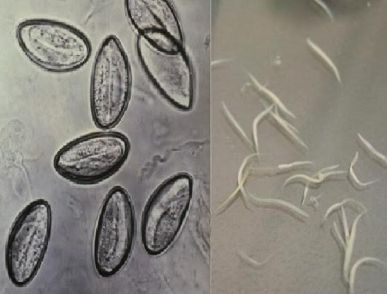 oxyuris vermicularis cacing kremi))