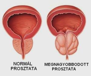 női prosztatarák Mi okozhatja az agy parazitáit?