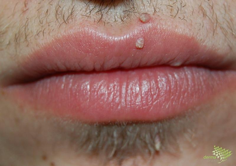 condyloma nyelv kezelése