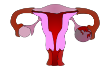 endometrium rák amboss