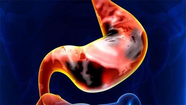 A vastagbélrák első tünetei, stádiumai és kezelése