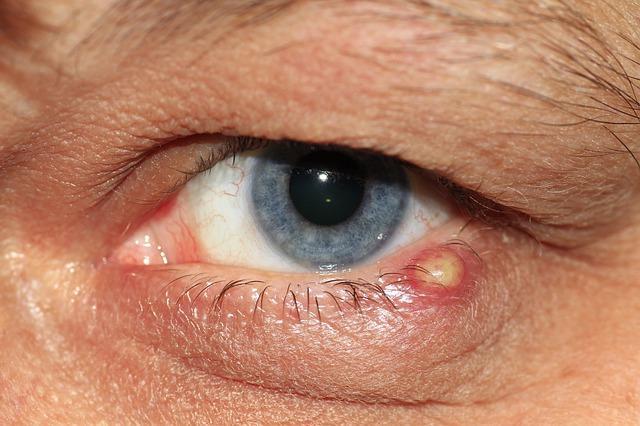 papilloma vírus az ajkára