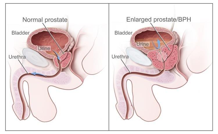 a prosztata neuroendokrin rákja