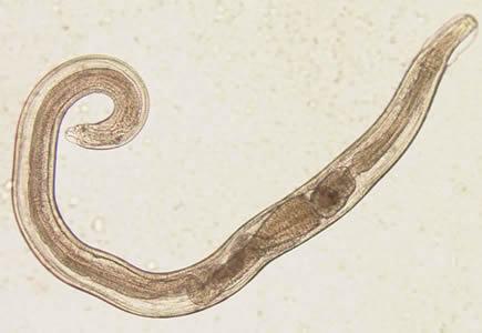 enterobius vermicularis oxyuris vermicularis)