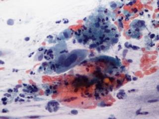 emberi papillomavírus, amit minden szolgáltatónak tudnia kell