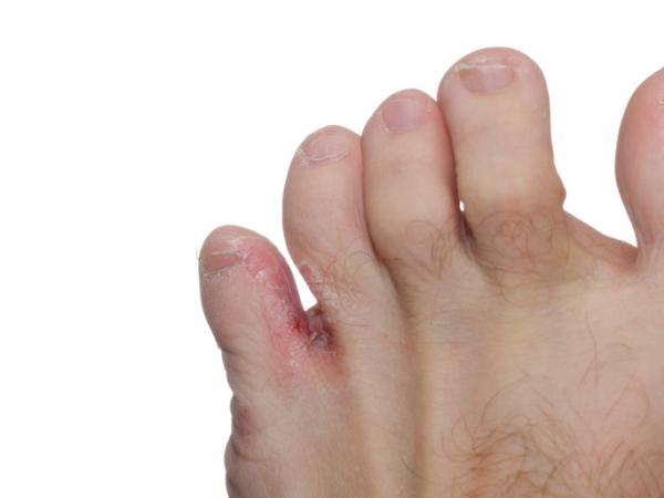 szemölcs a lábujjak között)