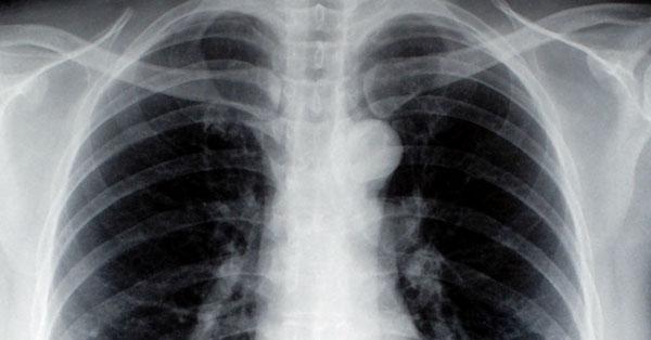 tüdőrák megbeszélések)