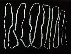 galandféreg emberi tünetek és kezelés)
