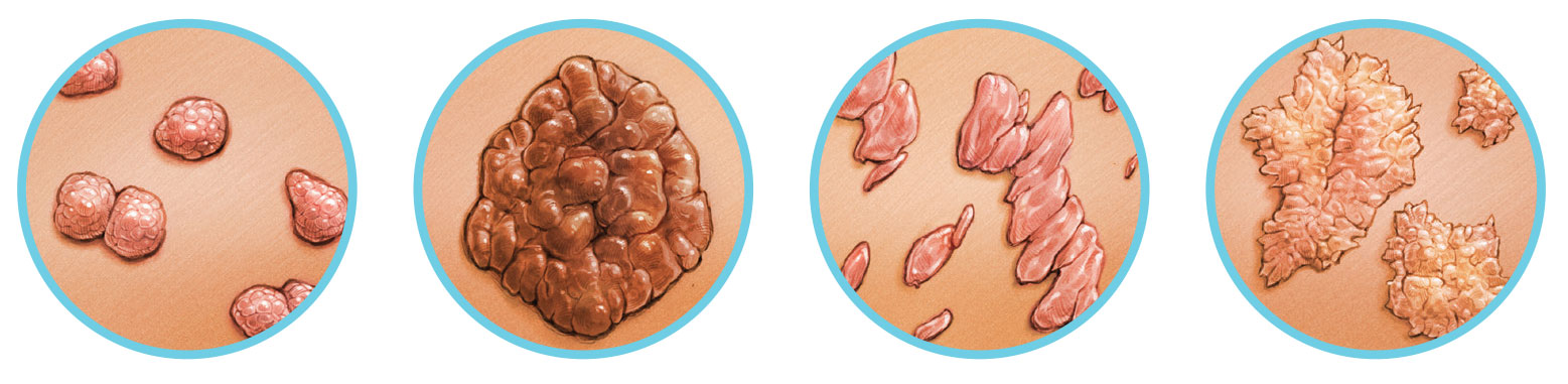 genitális szemölcsök a végbélnyílás kezeléséről