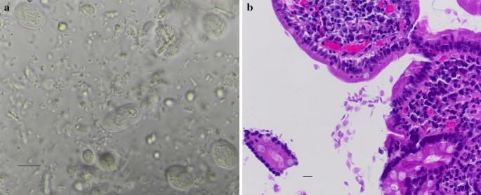 Giardia féreg gyógyszer - doras.hu - Féregtelenítés