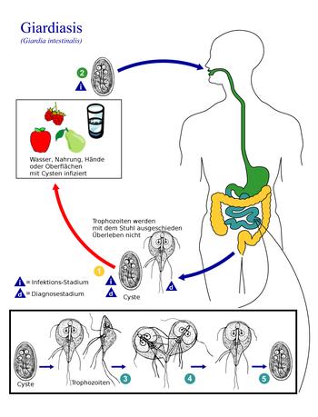 Infectia giardia simptome. Veziculita si diferenta de prostatita