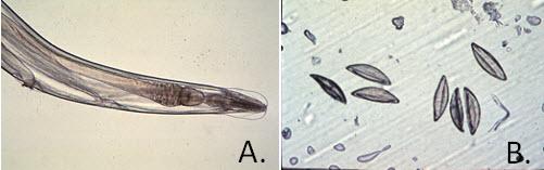 Graham-bizonyító teszt pinworms)