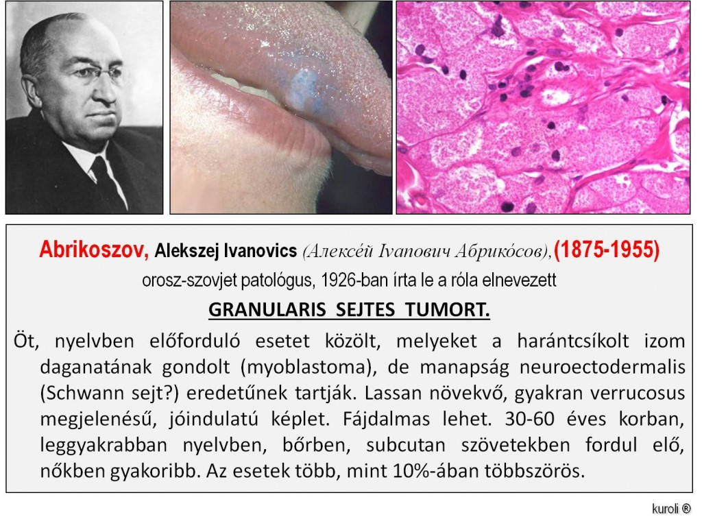harántcsíkolt izom jóindulatú rákja)