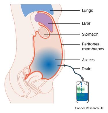 hashártya-terület rák