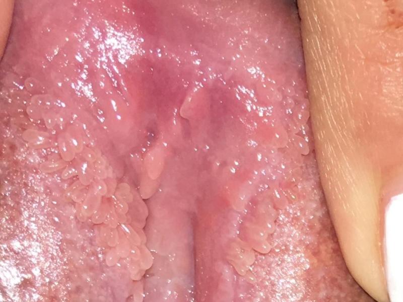 a condyloma eróziójának kezelése helminthosporium incurvatum
