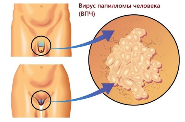 hogyan lehet gyógyítani az intim papillómákat)