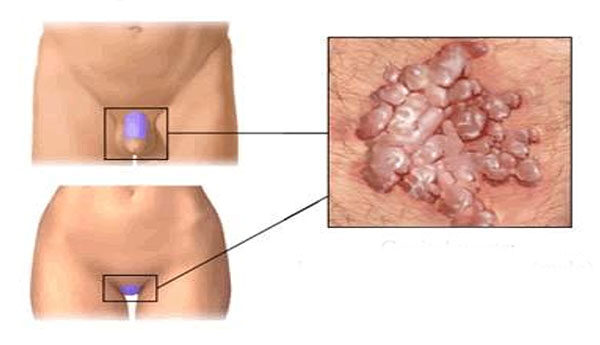 a papillómák okai jelennek meg retikulált papillomatosis kezelése