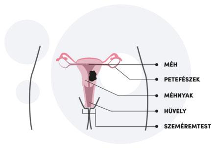 Milyen tünetek jelezhetnek rosszindulatú nőgyógyászati daganatot? - EgészségKalauz