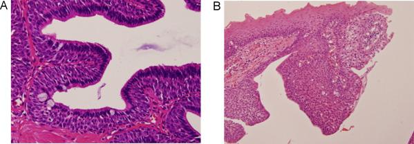 intraductalis papilloma dna)
