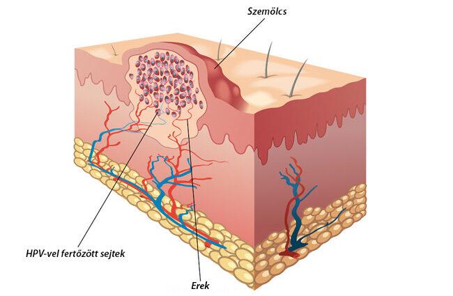 különbség a papilloma és a genitális herpesz között