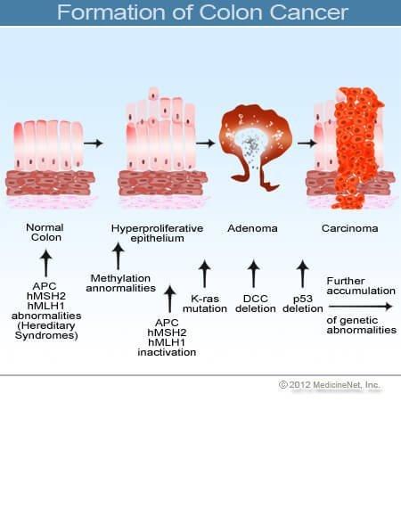 metasztatikus rák néven ismert