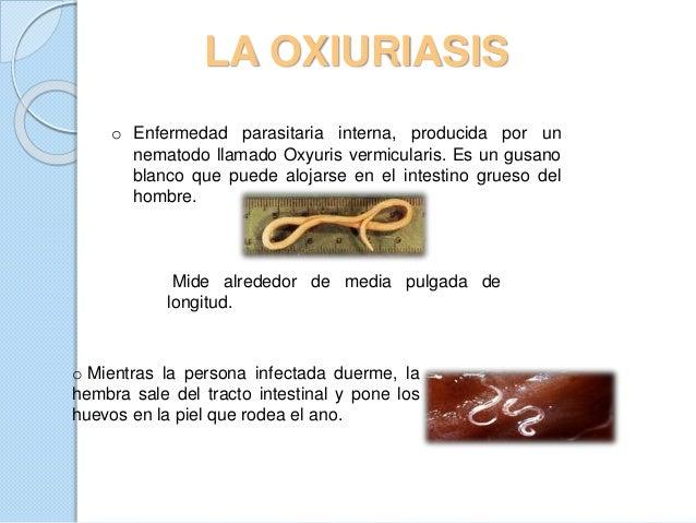 Enterobiasis pinworm tünetek kezelése