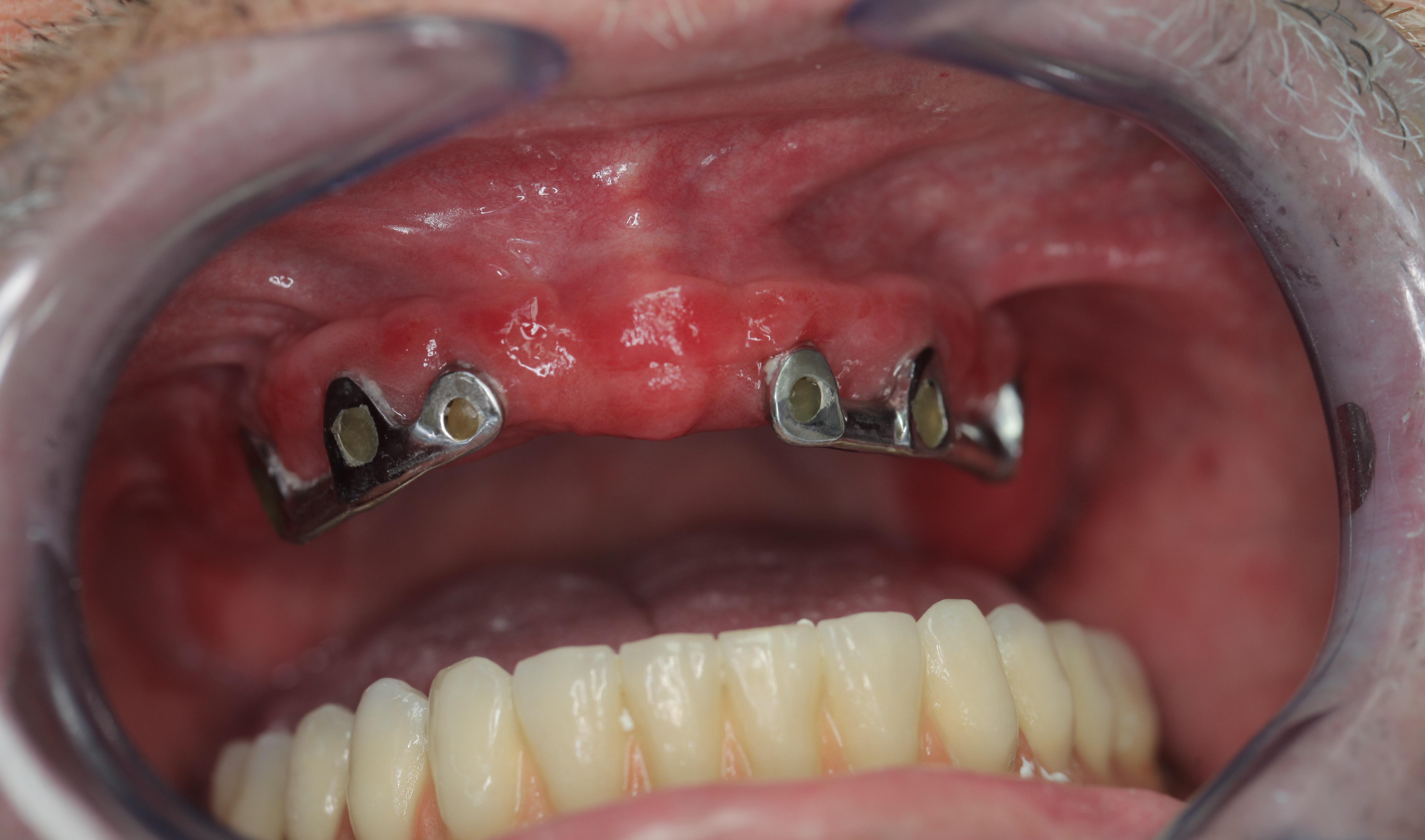 papillómák a nyelv alatt tabletták mit a hpv vírus szexuális érintkezésben szenved