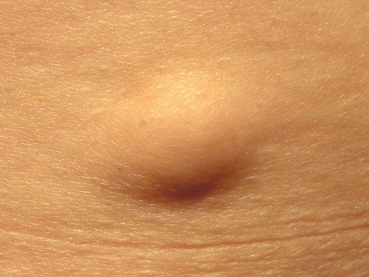 hogyan juthatnak ki a férgek a testből? papilloma condyloma különbség