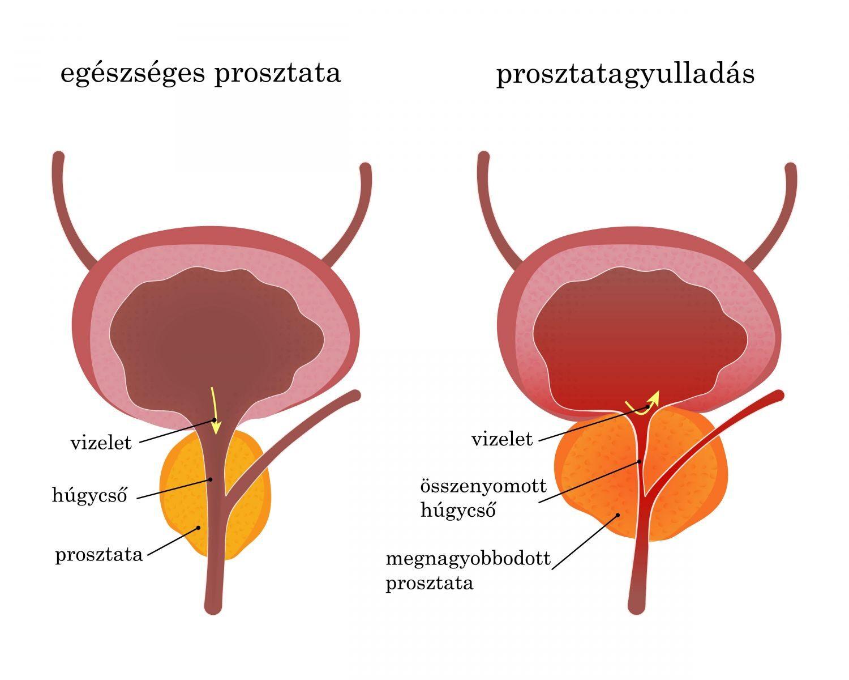 prosztatarák tünetei és kezelése)