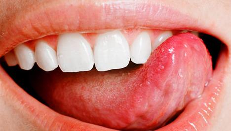 szájüregi rák ma hogyan lehet megszabadulni a parazitáktól a húsban