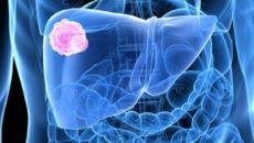 A leggyakoribb daganatok a bélben - HáziPatika