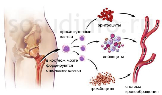 veleszületett dyserythropoietikus vérszegénység)
