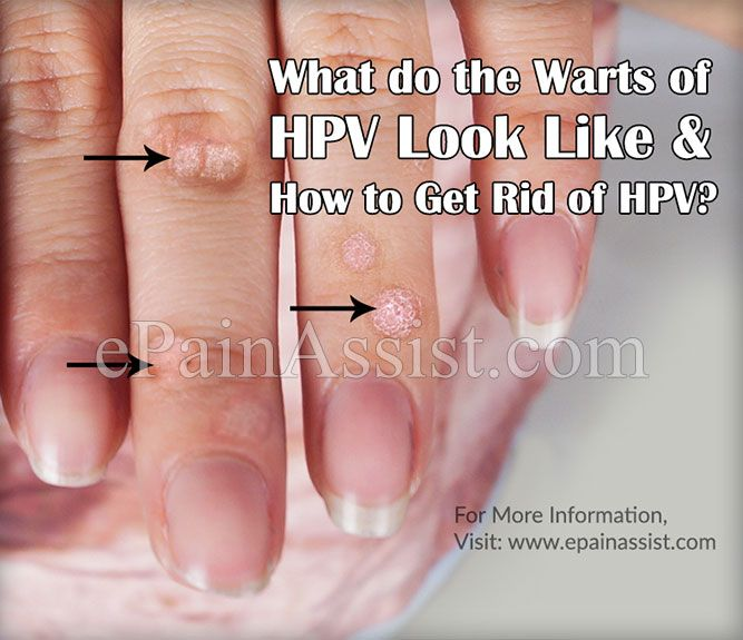 hpv vitamin terápia)