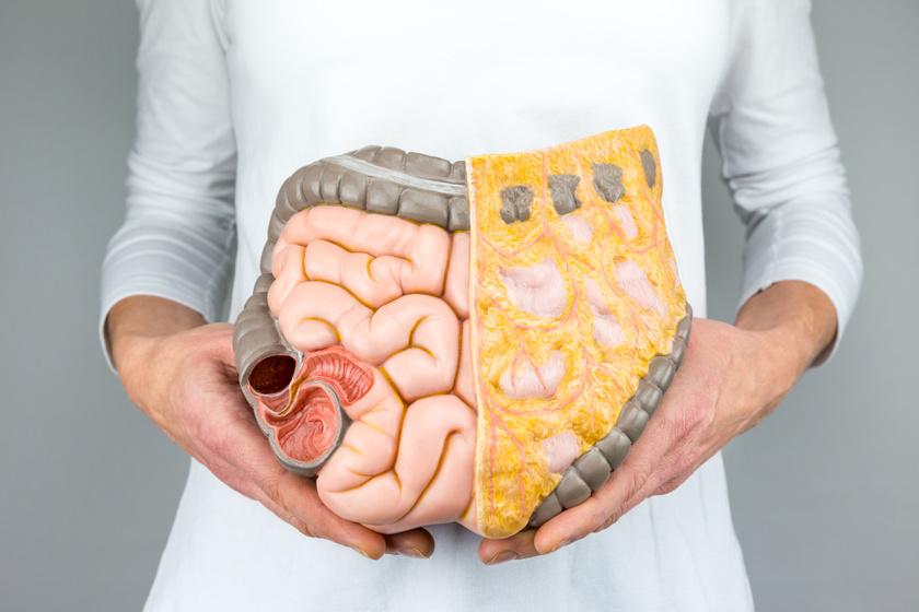 Táplálási terápia vastagbélrák esetén