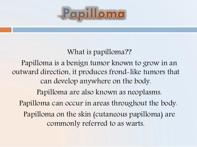 csatorna papilloma ppt