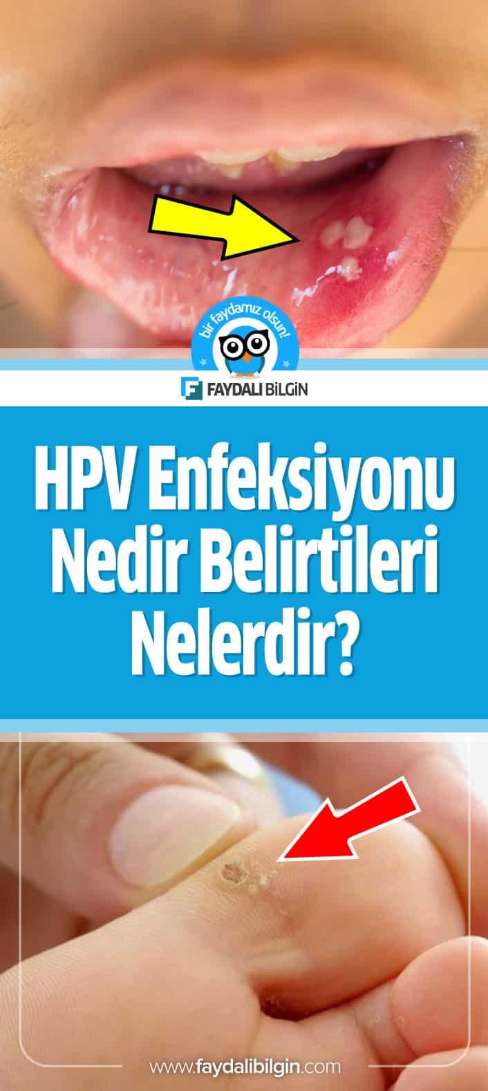 hpv infeksiyonlar nedir