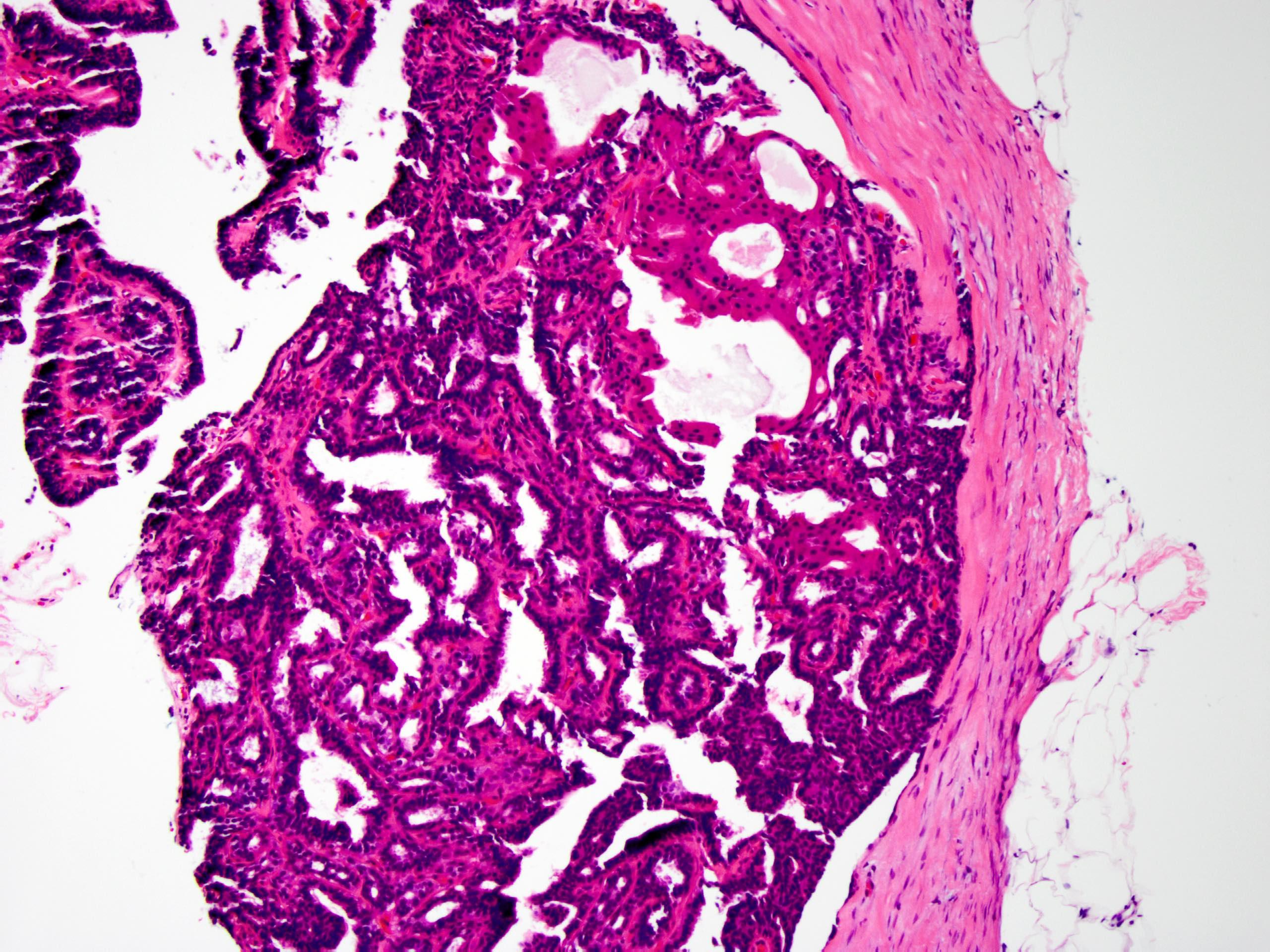 ductalis papilloma patológia körvonalai)