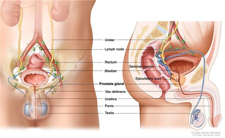 Túra a prosztata adenomában Gyakorolja a táplálkozást a prosztatagyulladás ellen