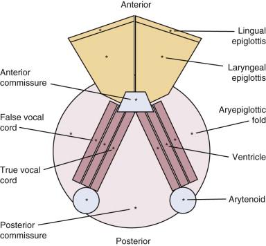 gége papillomatosis dysphagia