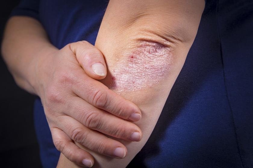Rüh a férgektől - A helminták gyógyszeres kezelése emberben