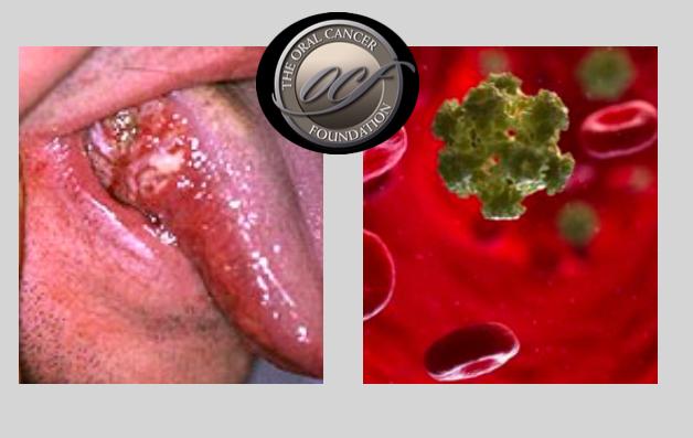 humán papilloma vírus és ustima